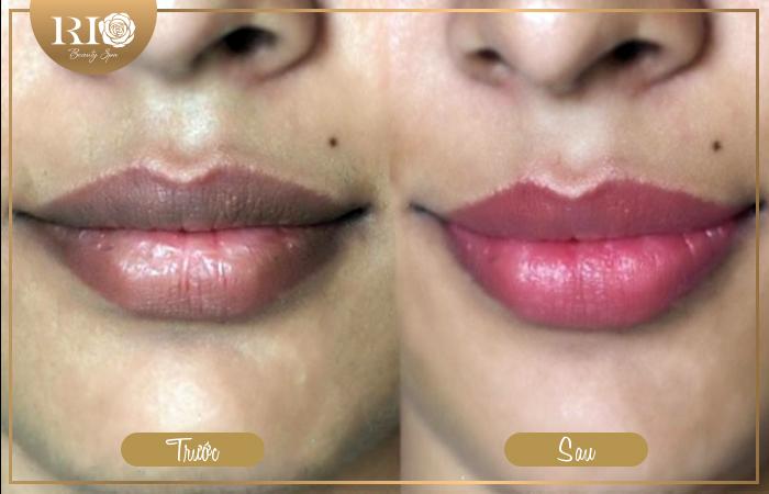 Cách khử thâm môi cho nam uy tín và chất lượng