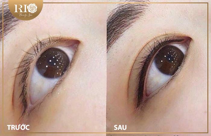 Phun xăm mí mắt có tác dụng làm đẹp như thế nào?