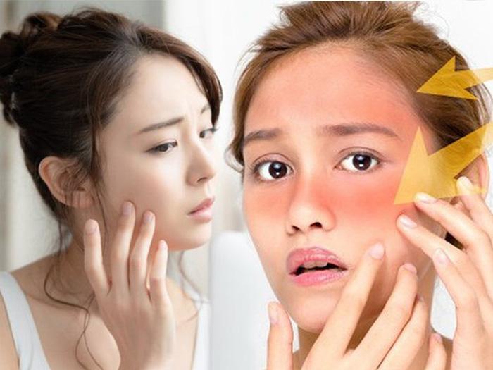 Những thói quen xấu gây hại cho làn da của bạn