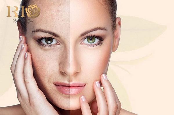 Bí quyết chăm sóc da mặt bị nám hiệu quả bạn nên biết