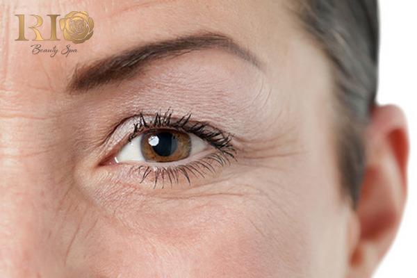 Bí quyết dưỡng da vùng mắt khỏi lão hóa hiệu quả