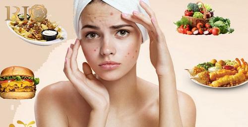 Những món ăn làn da bị mụn nên ăn và nên tránh xa
